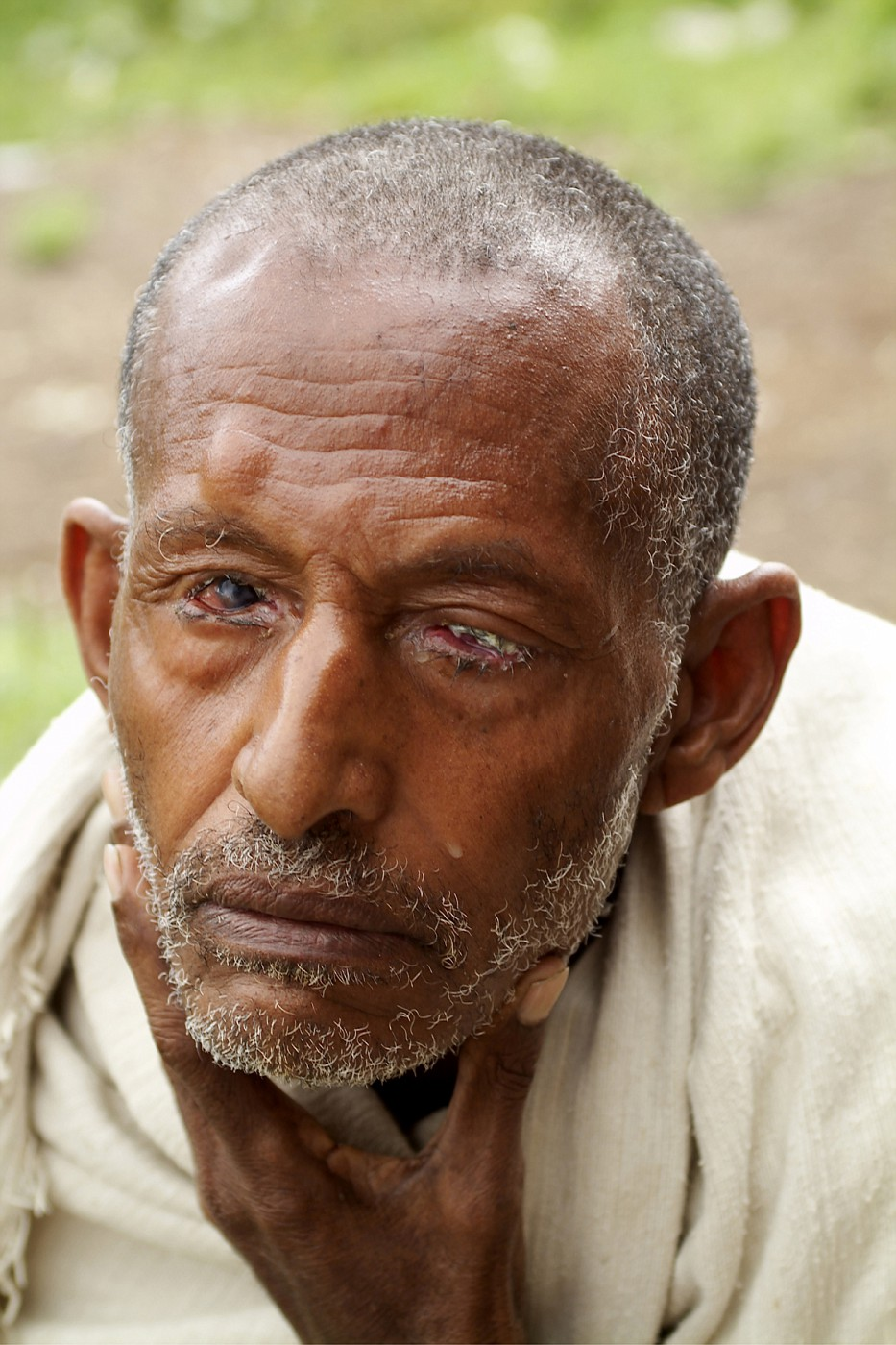 13 old man trachoma